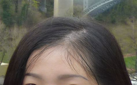 female mid frontal balding female hair loss hair scalp treatment singapore