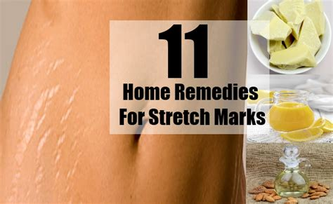 11 home remedies for stretch marks search home remedy