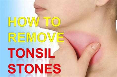 remove tonsil stones with 4 helpful home remedies that work