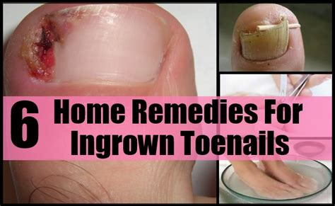 6 best home remedies for ingrown toenails