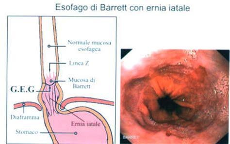 alimentazione con ernia iatale alimentazione per malattie dell esofago e reflusso