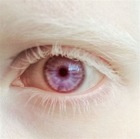 pink eye color 25 best ideas about albinism on model