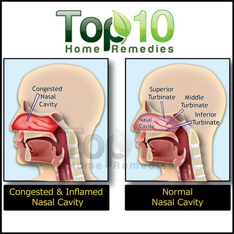 nasal congestion home remedies for nasal congestion top 10 home remedies