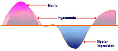 difference between mood swings and bipolar hypomania and mania what is the difference dr naima