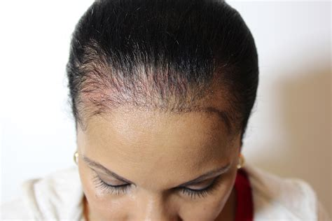 scalp micropigmentation for african american women in florida jonathan gerow scalp micropigmentation phone 866 964