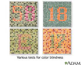 most common color blindness scripps health color vision test