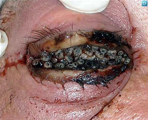 with maggots maggot infested eye picture archive