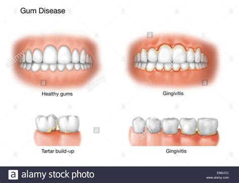 healthy gums healthy gums vs unhealthy gums www imgkid the image kid has it