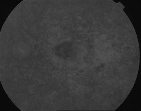 fundus u 2 ophthalmic artery occlusion with total ophthalmoplegia