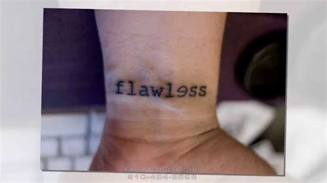 does tattoo removal leave scars removal scars www pixshark images galleries