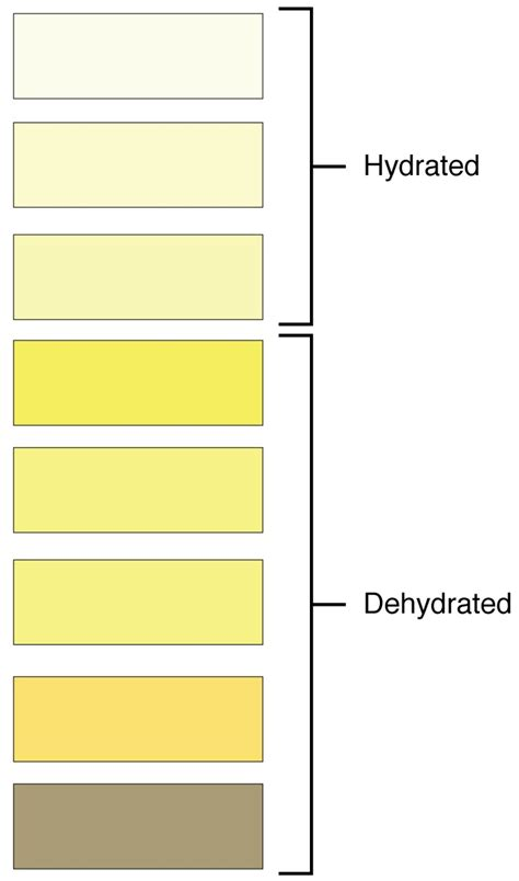 what color is your urine supposed to be what color should urine be bladder help