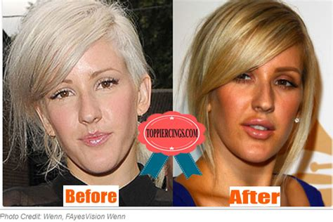 before and after pictures of ellie from love lust or run ellie goulding plastic surgery ellie goulding without