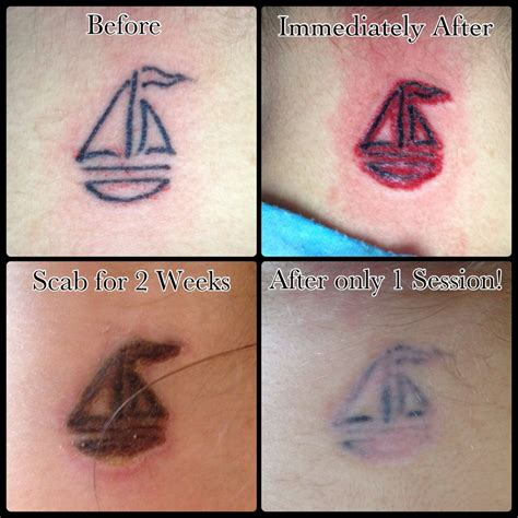 non laser tattoo removal san antonio texas mad makeup