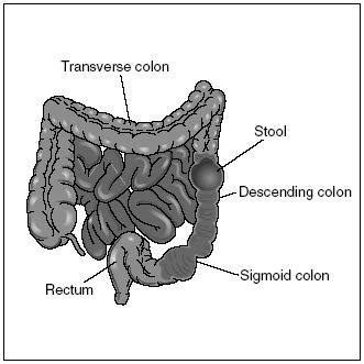 4 Sections Of Large Intestine by Descending Colon Location Function Disorders And Pictures