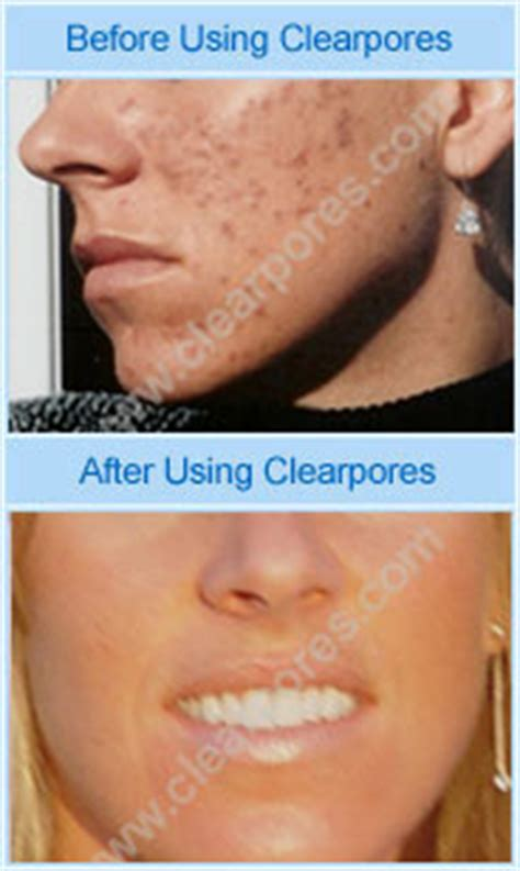 Accutane Liver Detox by A Review Of Clearpores 174 I Saw Results On My Back In Two