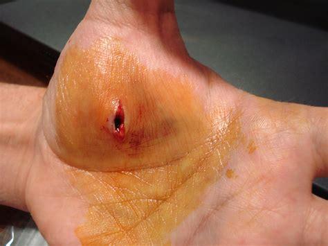 imagenes de heridas asquerosas heridas
