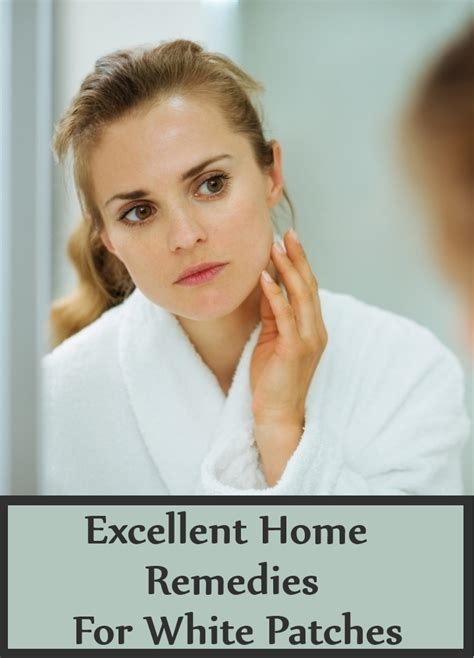 excellent home remedies  white patches search home