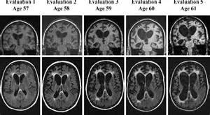 Alfa img showing gt dementia mri