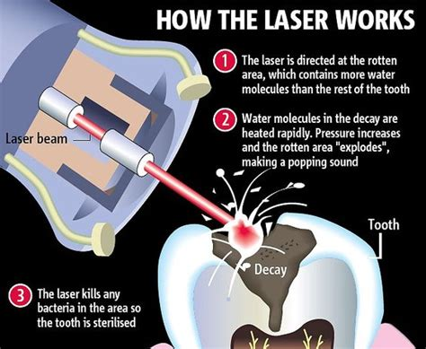 diode laser offers minimum benefit for periodontal therapy dental lasers can remove decay with no need for dental anesthetics like novocaine laser