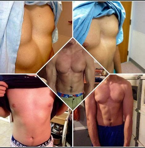 Parisae Condition Ae Mental Not Physical by 21 Best Images About Pectus Excavatum On