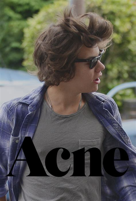 hairstyles for men with acne harry styles acne on tumblr