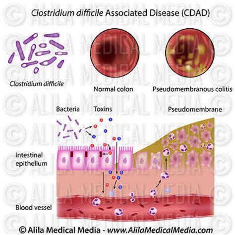 alila media gastroenterology digestive
