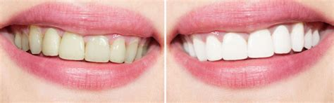teeth whitening service  staines egham windsor