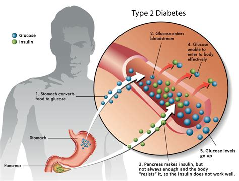 how does a get diabetes about diabetes the clinic