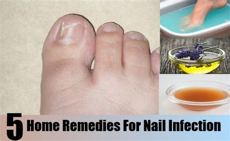 gorgeous home remedies for bacterial infection on cure for