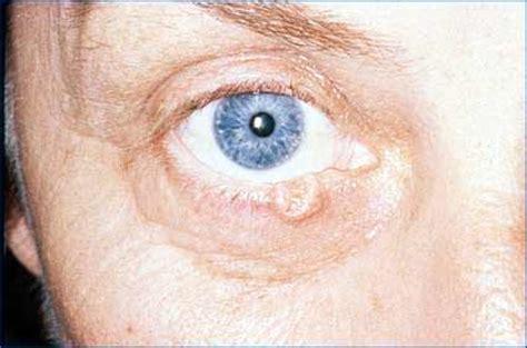 eyelid tumor eyelid tumors eye physicians of lancaster