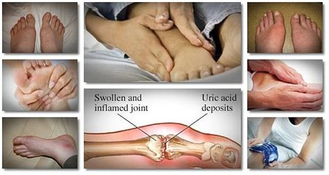 14 home remedies for gout in ankle finger