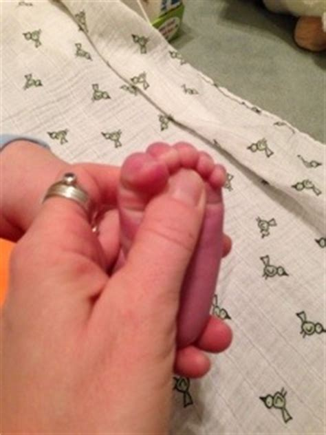 Planter Grasp by Primitive Reflexes Or Cool Tricks You Can Do With