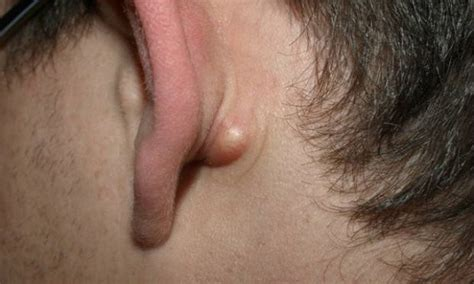 do you a lump on your back neck or your ear