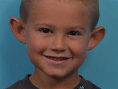 Big Ears In Boys | 6 year old boy gets life changing plastic surgery to