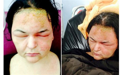 Salep Benzokain dahsyat satu menit dapat mengetahui tingkat alergi