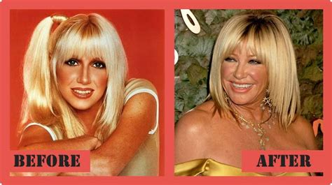 suzanne somers celebrity plastic surgery 24 201 best images about plastic celebrity on pinterest