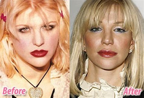 11 classic hollywood stars who had plastic surgery vintage everyday showbiz masala hollywood celebrities before and after