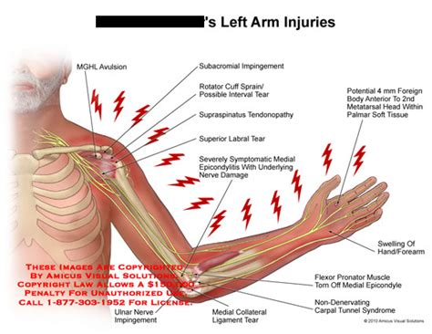 hitting nerve in elbow medical exhibits demonstrative aids illustrations and models