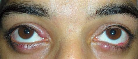 calazio interno calazio orzaiolo meibomite blefarite dacrioliti dr