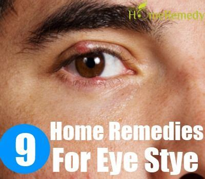9 home remedies for eye stye home remedies