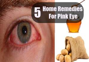 home remedies for conjunctivitis pink eye home remedies treatments and cure usa