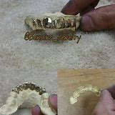 Gold Teeth Grillz | 2560 x 2560 jpeg 3451kB