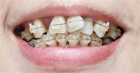 dental malocclusion   fix crooked teeth