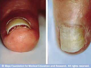 nail separating from nail bed biotin avonladykathy