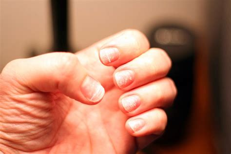 brittle nails point to thyroid problem the peoples pharmacy the life extension blog ridges in your nails point to
