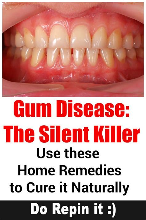image gallery antibiotics gum disease