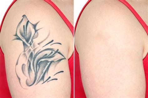 removing tattoos with laser aesthetic skincare jmecc malaysia