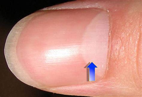 Finger Nail by Fingernail And Toenail Abnormalities Nail The Diagnosis