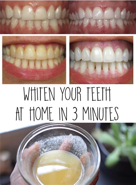 whiten your teeth at home in 3 minutes crafting for holidays