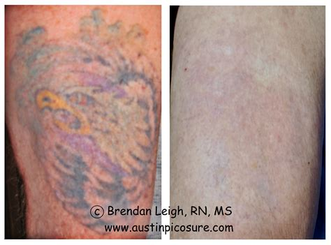 complete tattoo removal picosure strategies for recalcitrant tattoos